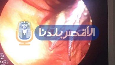 Photo of بدء العمل بوحدة جراحات مناظير الجهاز الهضمي بمستشفي الأقصر الدولي
