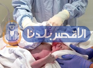 "Photo of اغرب حالة ولادة في العالم لأمرأه مصرية تلد ""طفلة حامل"""