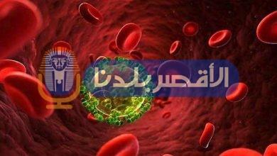 Photo of اختراق طبي .. نجاح المرحلة الأولى من العلاج المناعي للإيدز