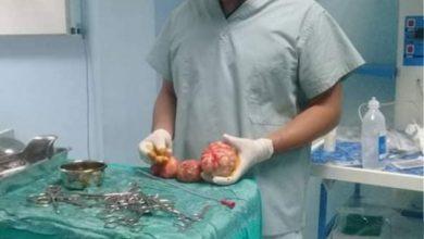"Photo of ""بالصور""طبيب أقصري ينجح في استئصال أورام ليفية برحم سيدة ويحقق حلمها للإنجاب بعد 9 سنوات حرمان"